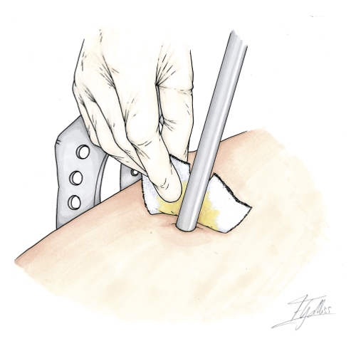 Cuidados de los tornillos óseos: retirada de gasas usadas