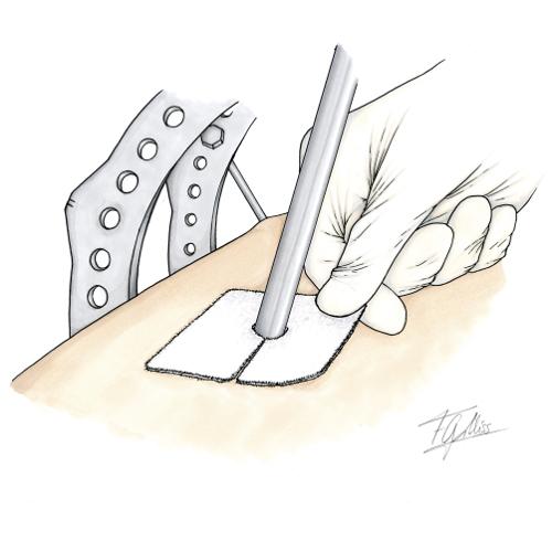 Cuidados de los tornillos para huesos: colocación correcta de gasas