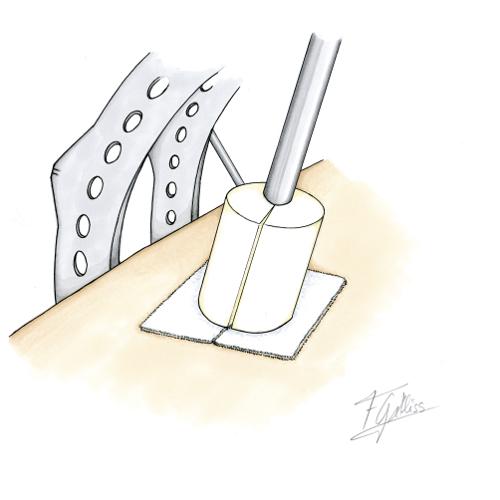 Tornillos óseos y sus cuidados: inmovilización de la fijación