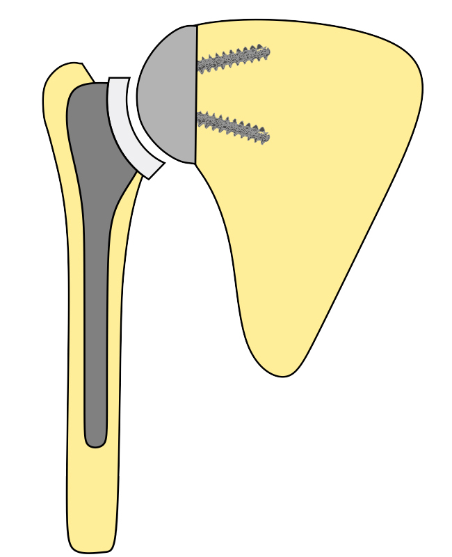 prótesis invertida de hombro