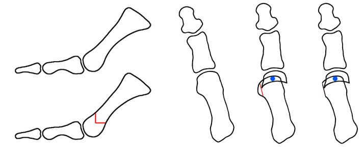osteotomía en Chevron de hallux valgus
