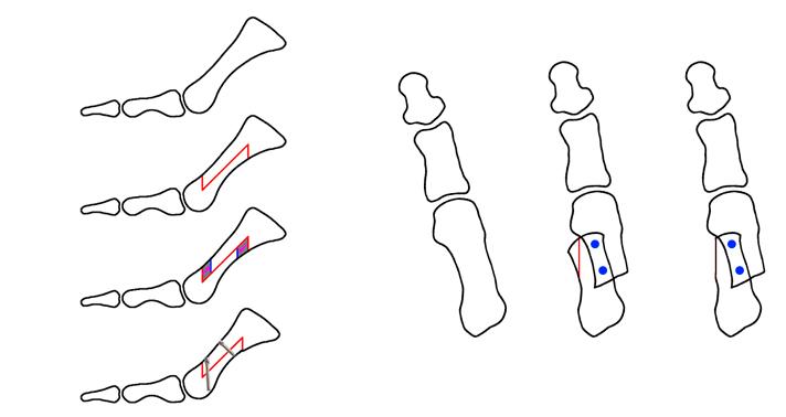 osteotomía de Scarf de hallux valgus