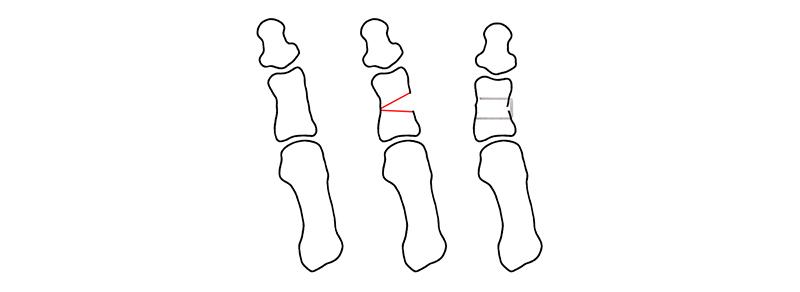 osteotomía de Akin de hallux valgus