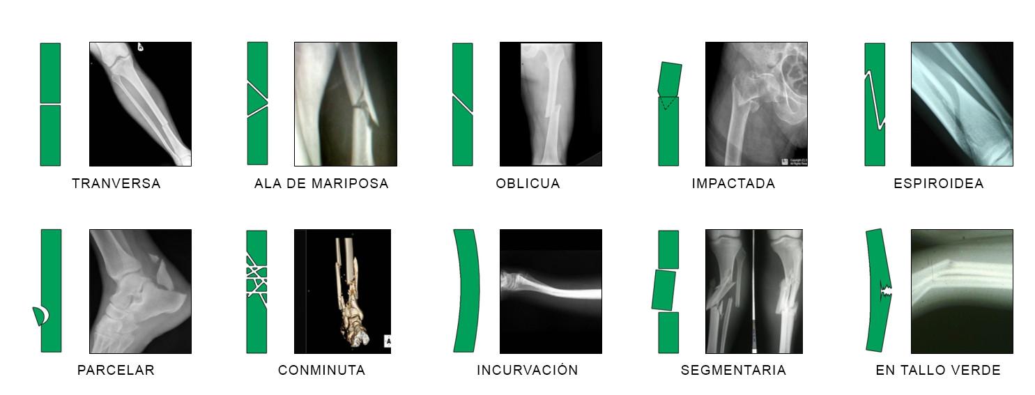 fracturas óseas