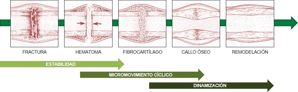 tratamiento de una fractura ósea: fases
