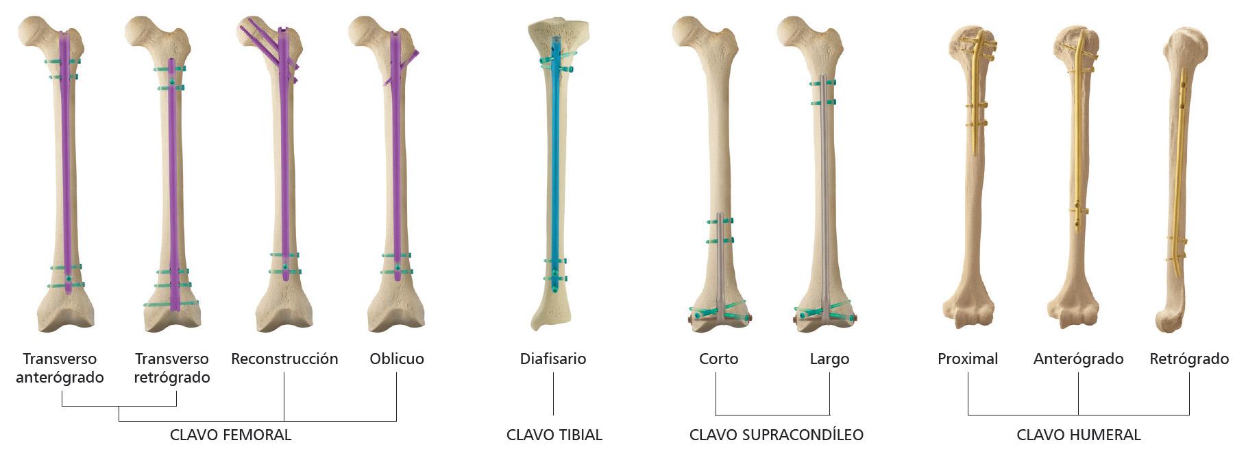 clavo intramedular para tratamiento de fracturas