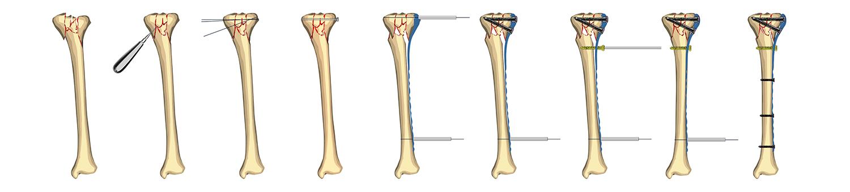 placas de osteosíntesis
