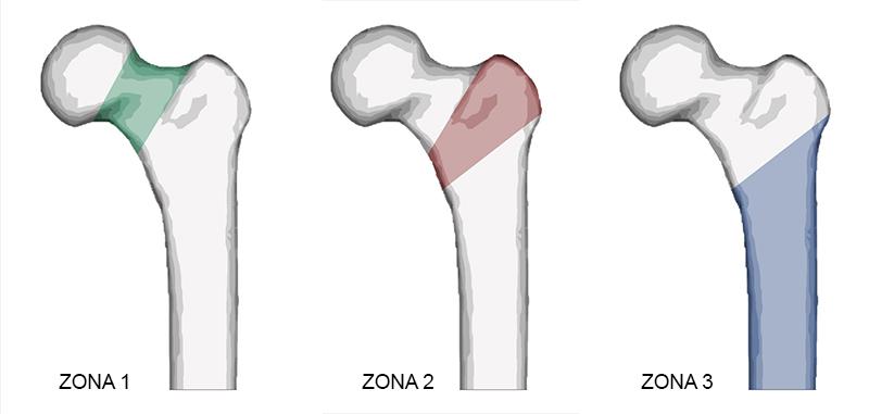 fractura de cadera: tipos