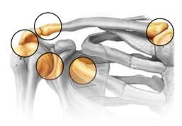 fractura de hombro