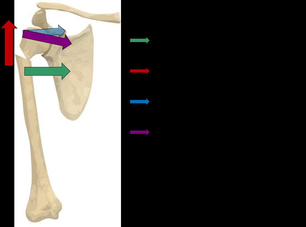 patrones de desplazamiento en las fracturas de hombro